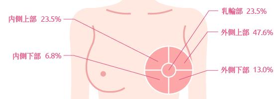 乳がんのできやすい箇所
