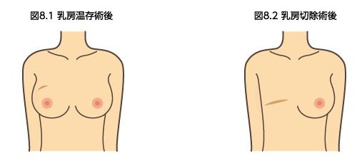 乳房温存術 乳房切除術