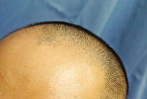 抗がん剤の1回目:髪の毛をつるつるにした