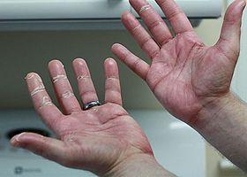 乳がんの副作用「手足症候群」について