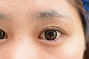 抗がん剤の副作用:涙目