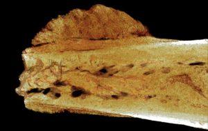 170万年前のヒト化石に最古のがん発見