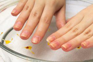 抗がん剤の副作用「手足症候群」爪の変化