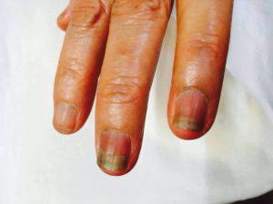 抗がん剤治療中の爪の黒ずみ