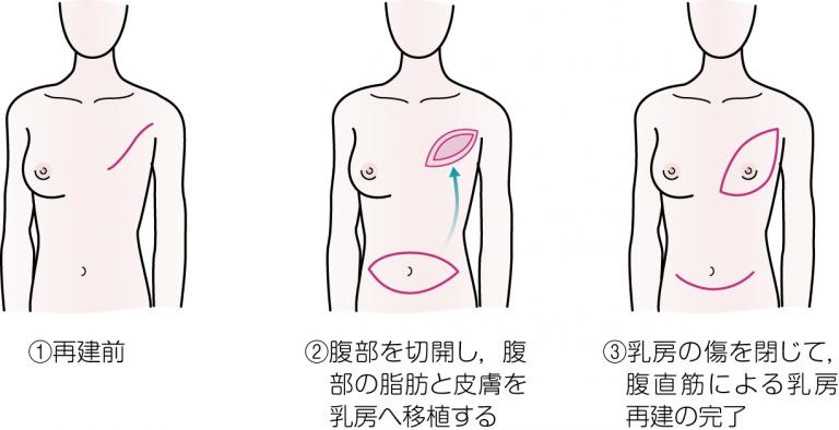 乳房再建 自分の組織を使う手術