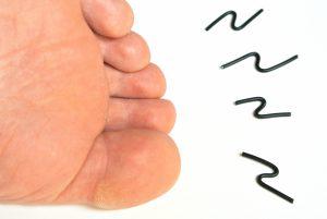 手足症候群:抗がん剤による手足のしびれと感覚の麻痺