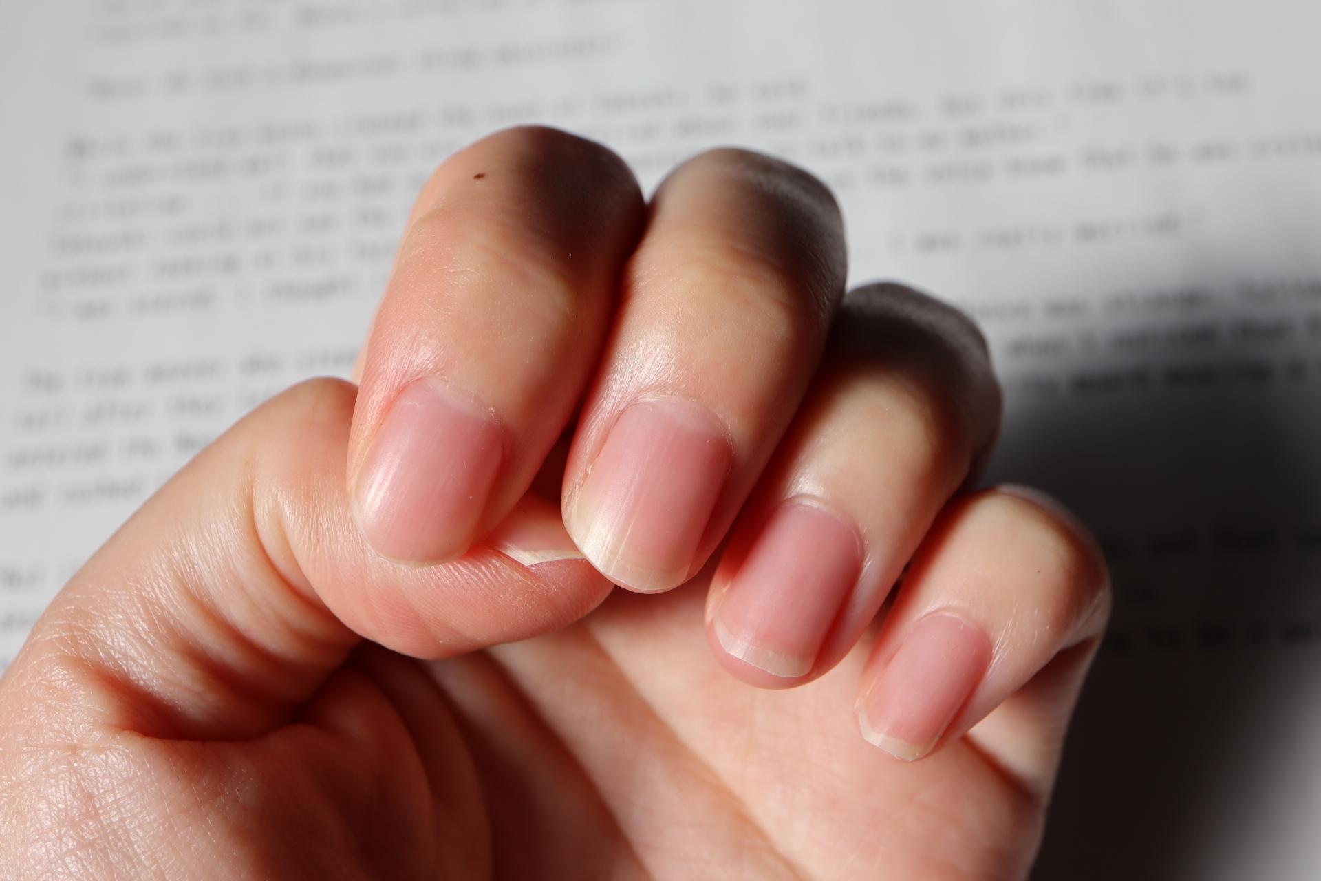 抗がん剤治療中の爪トラブルとネイルケア