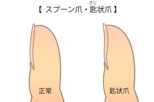 スプーン爪・匙状爪