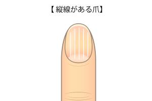 縦線がある爪