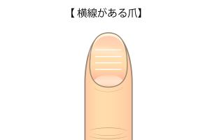 横線がある爪