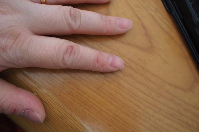 リンパ浮腫 深爪・ササクレは注意しましょう。