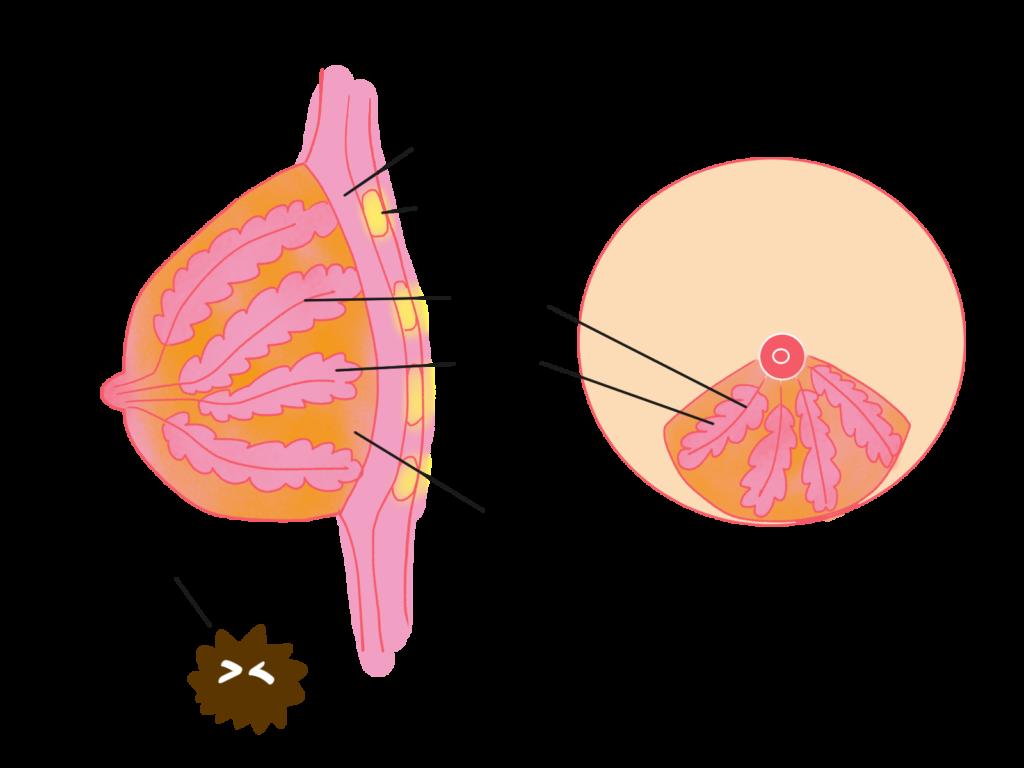 皆が乳がんを発見したきっかけで一番多いのはセルフチェックだった!自分で乳がんをチェックする方法を伝授いたします!